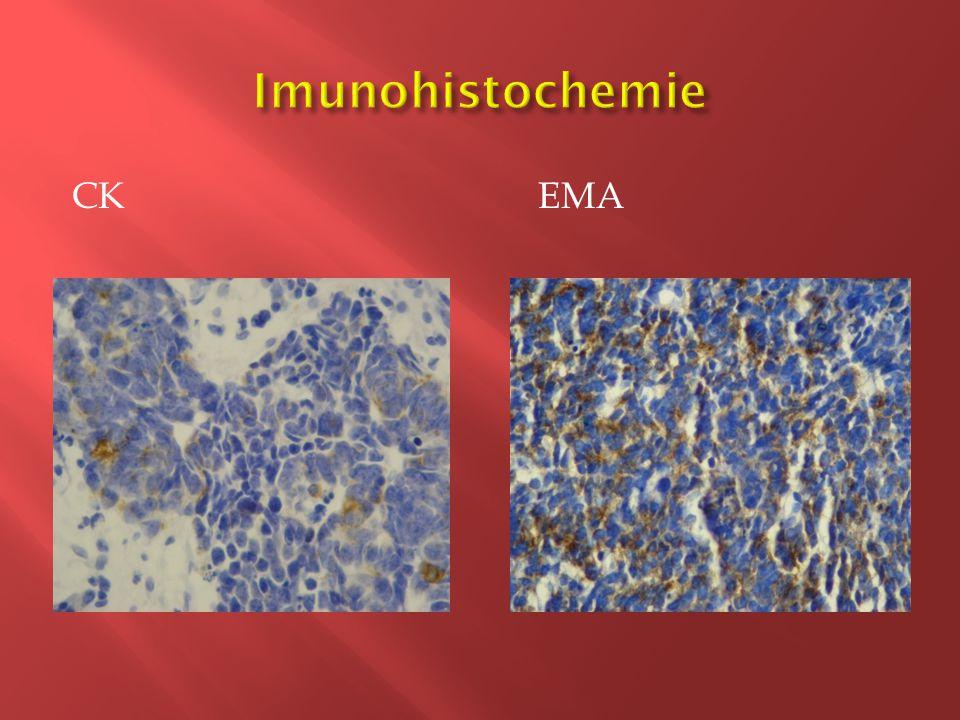 Imunohistochemie CK EMA