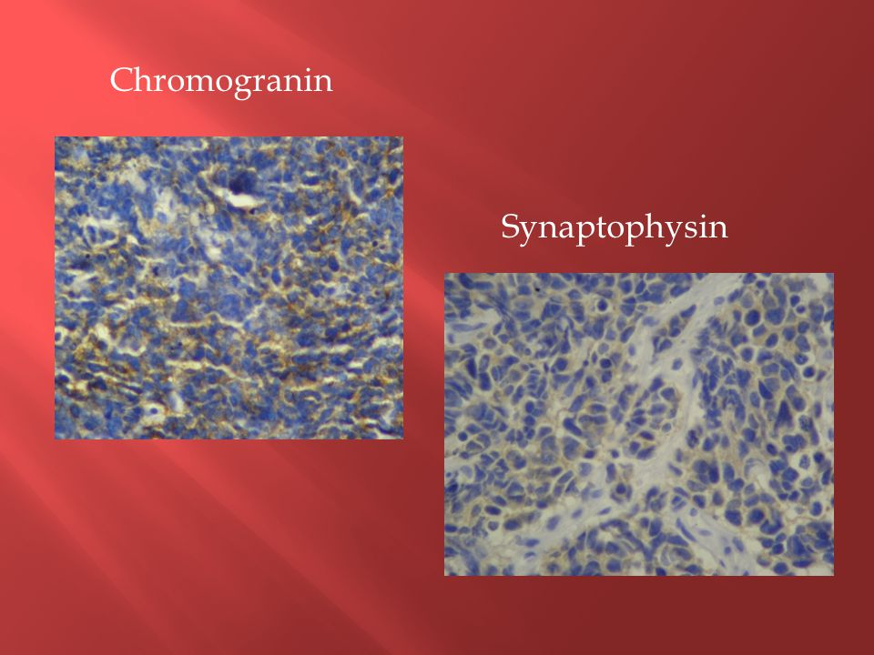 Chromogranin Synaptophysin