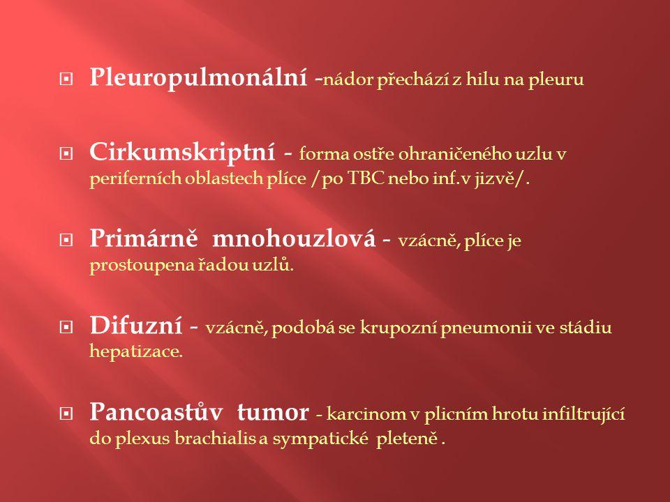 Pleuropulmonální -nádor přechází z hilu na pleuru