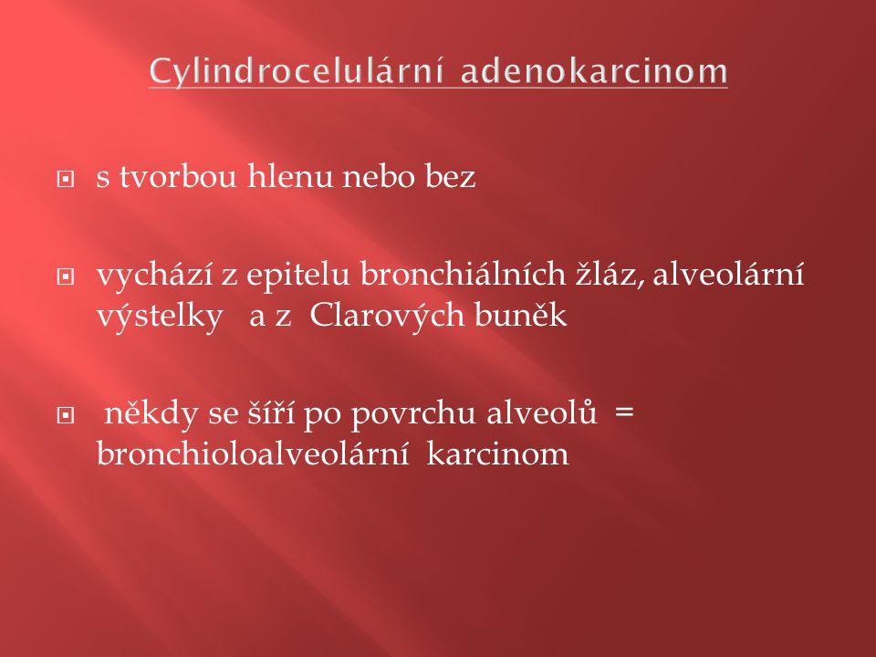 Cylindrocelulární adenokarcinom