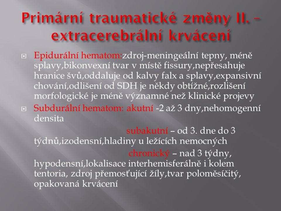 Primární traumatické změny II. – extracerebrální krvácení