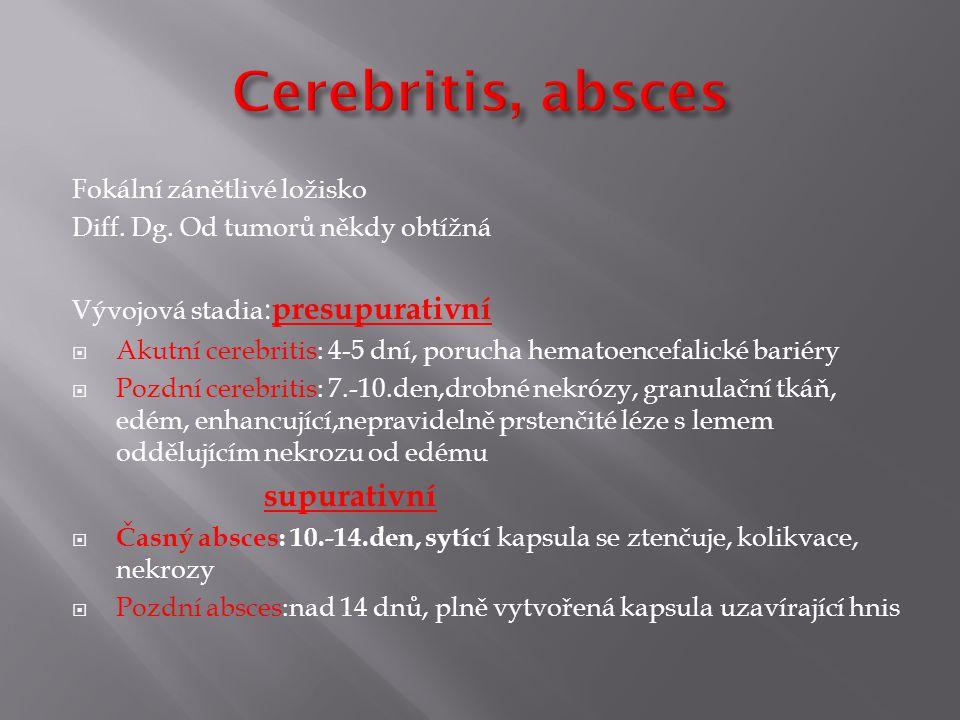 Cerebritis, absces supurativní Fokální zánětlivé ložisko