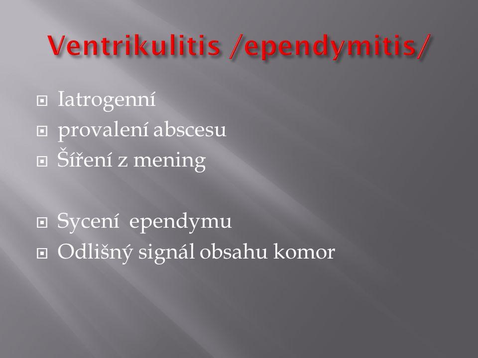 Ventrikulitis /ependymitis/