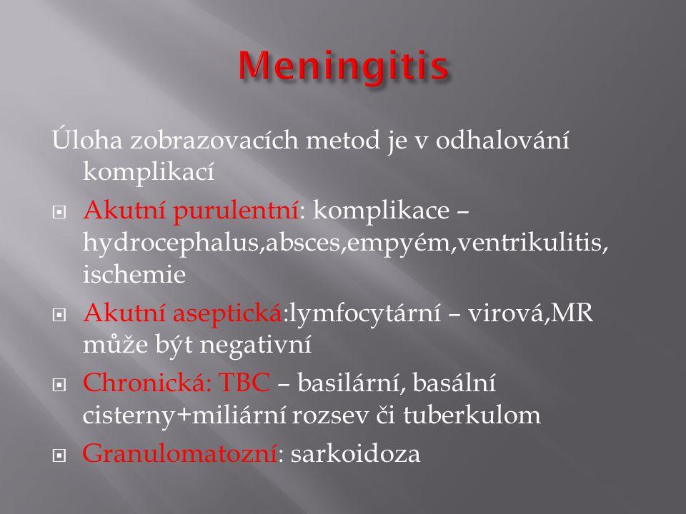 Meningitis Úloha zobrazovacích metod je v odhalování komplikací