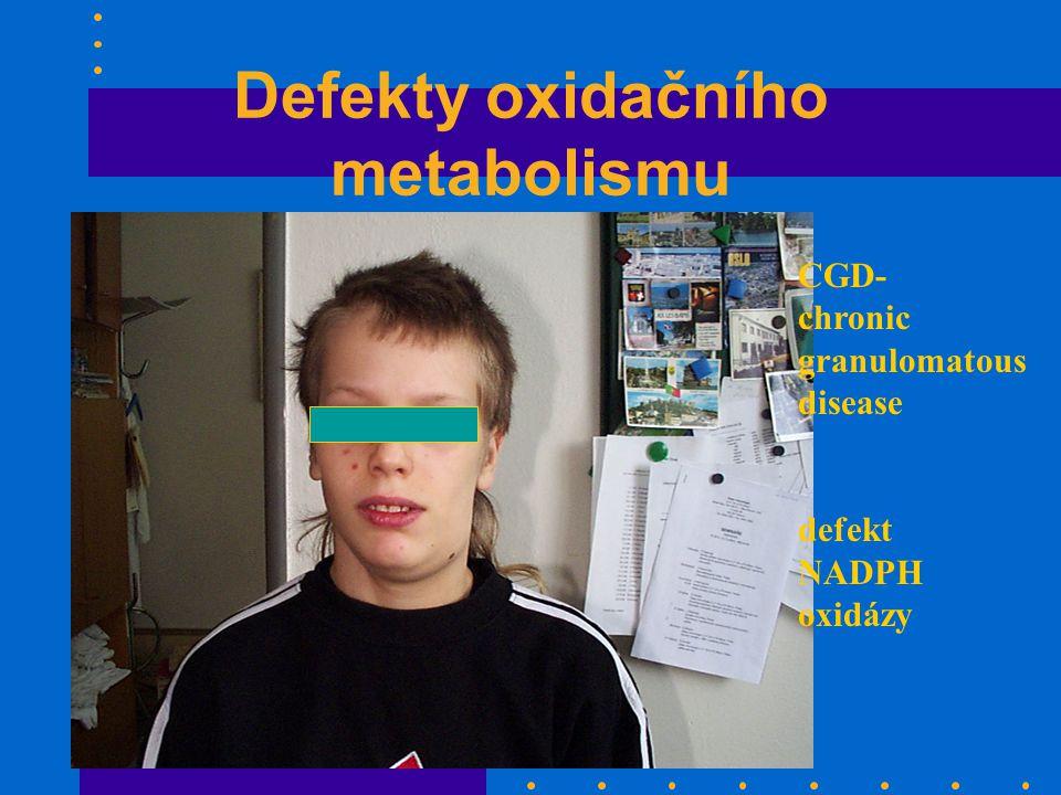 Defekty oxidačního metabolismu