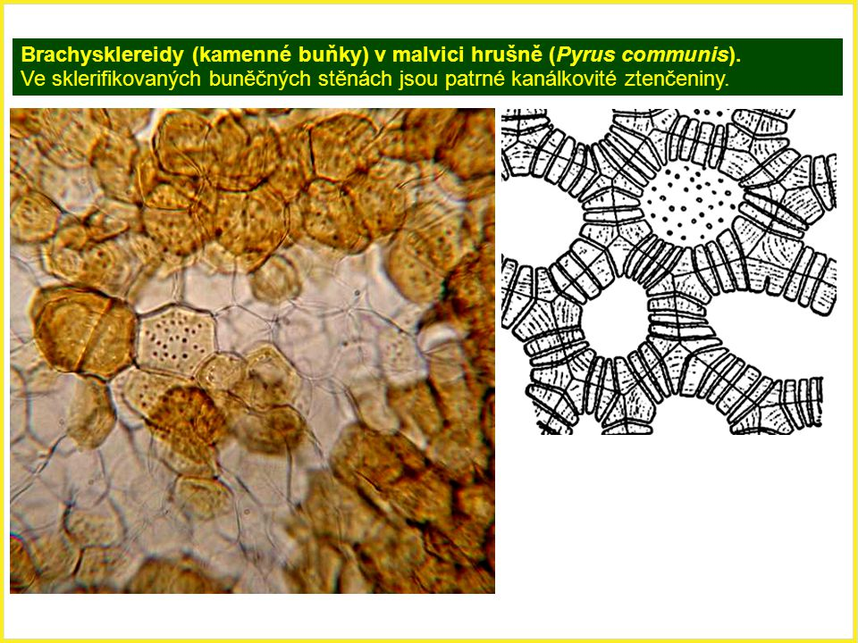 Brachysklereidy (kamenné buňky) v malvici hrušně (Pyrus communis).