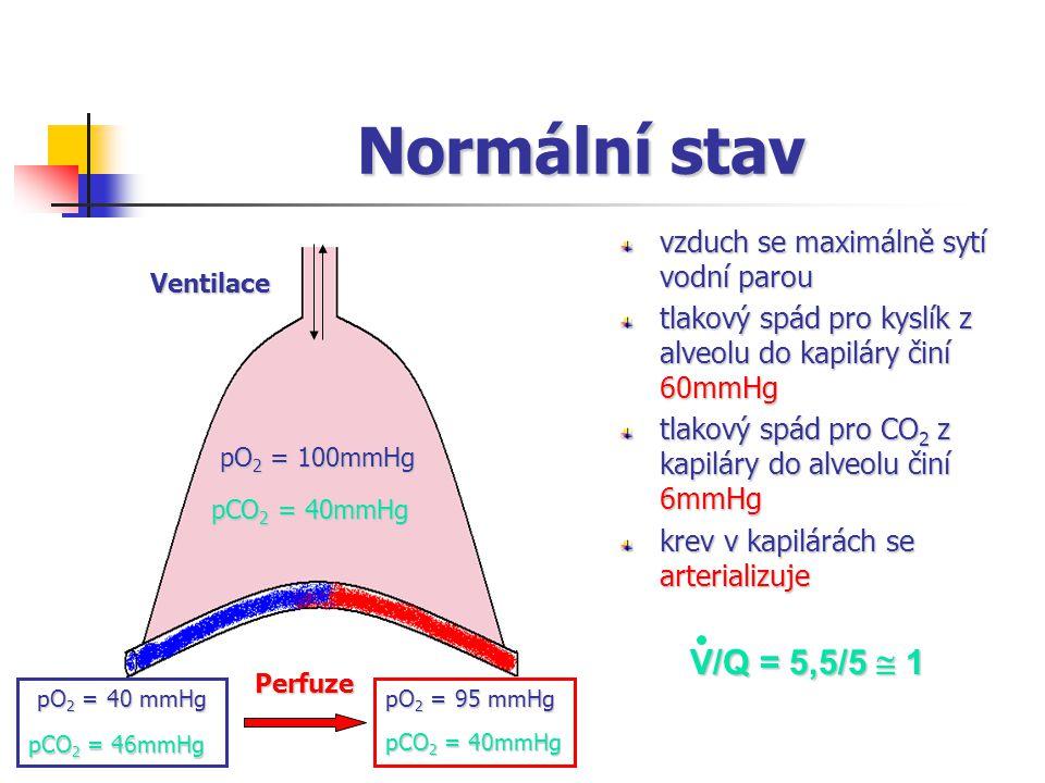 Normální stav V/Q = 5,5/5  1 vzduch se maximálně sytí vodní parou