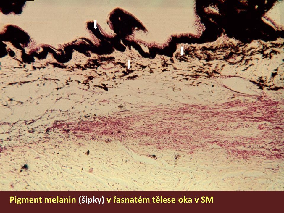 Pigment melanin (šipky) v řasnatém tělese oka v SM