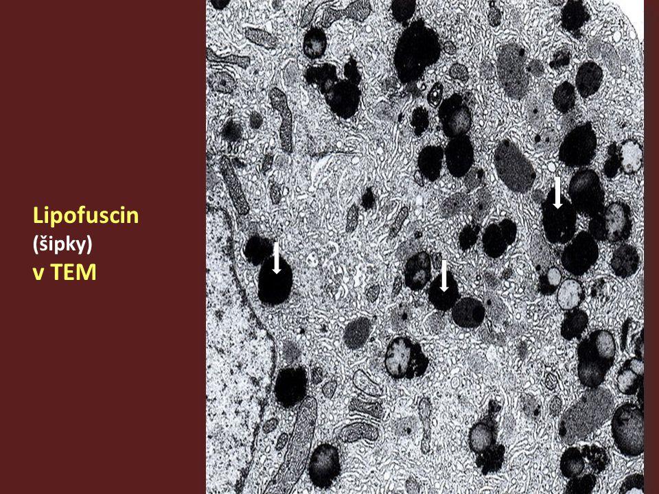 Lipofuscin (šipky) v TEM