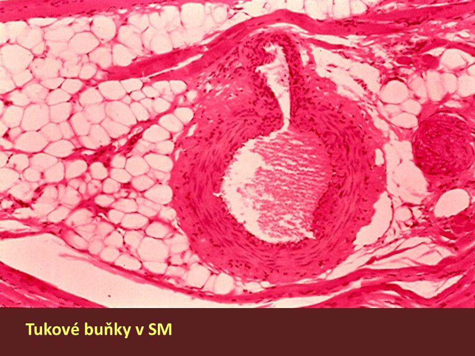 Tukové buňky v SM