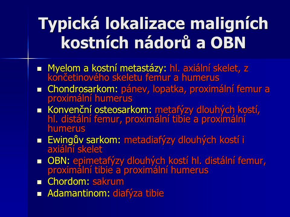 Typická lokalizace maligních kostních nádorů a OBN