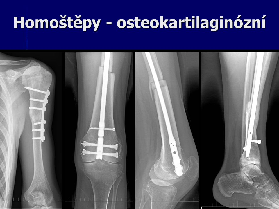 Homoštěpy - osteokartilaginózní