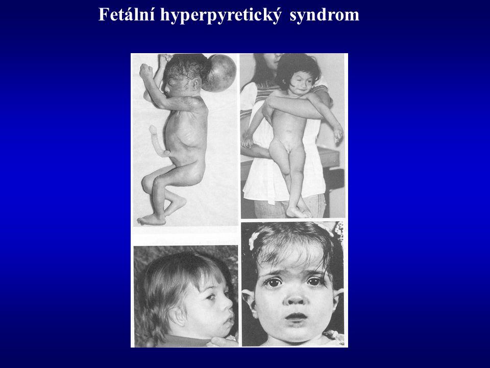 Fetální hyperpyretický syndrom