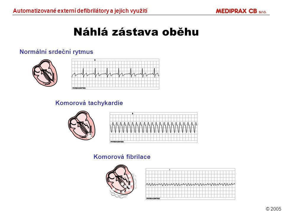 Automatizované externí defibrilátory a jejich využití
