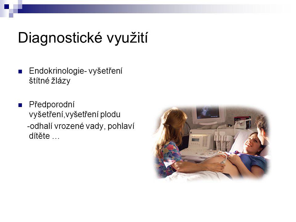 Diagnostické využití Endokrinologie- vyšetření štítné žlázy