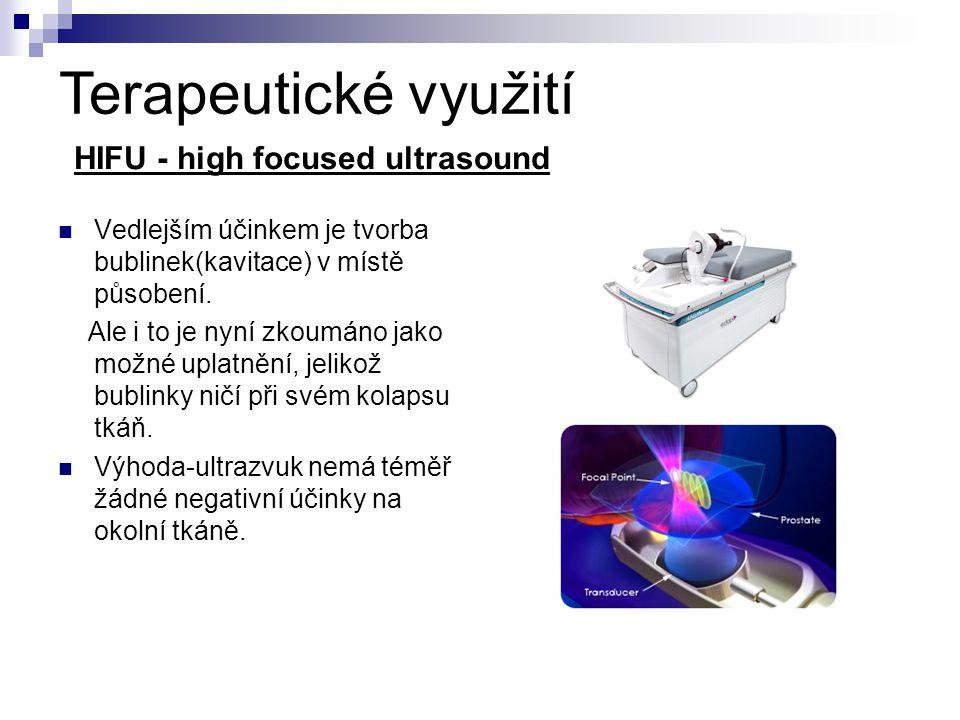 Terapeutické využití HIFU - high focused ultrasound