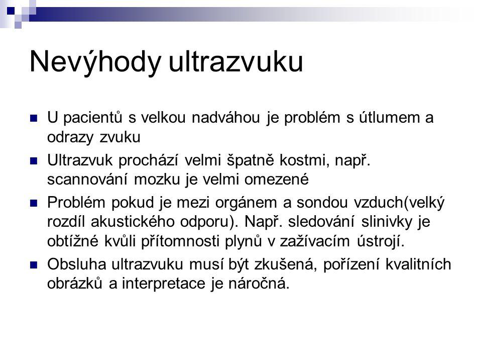 Nevýhody ultrazvuku U pacientů s velkou nadváhou je problém s útlumem a odrazy zvuku.