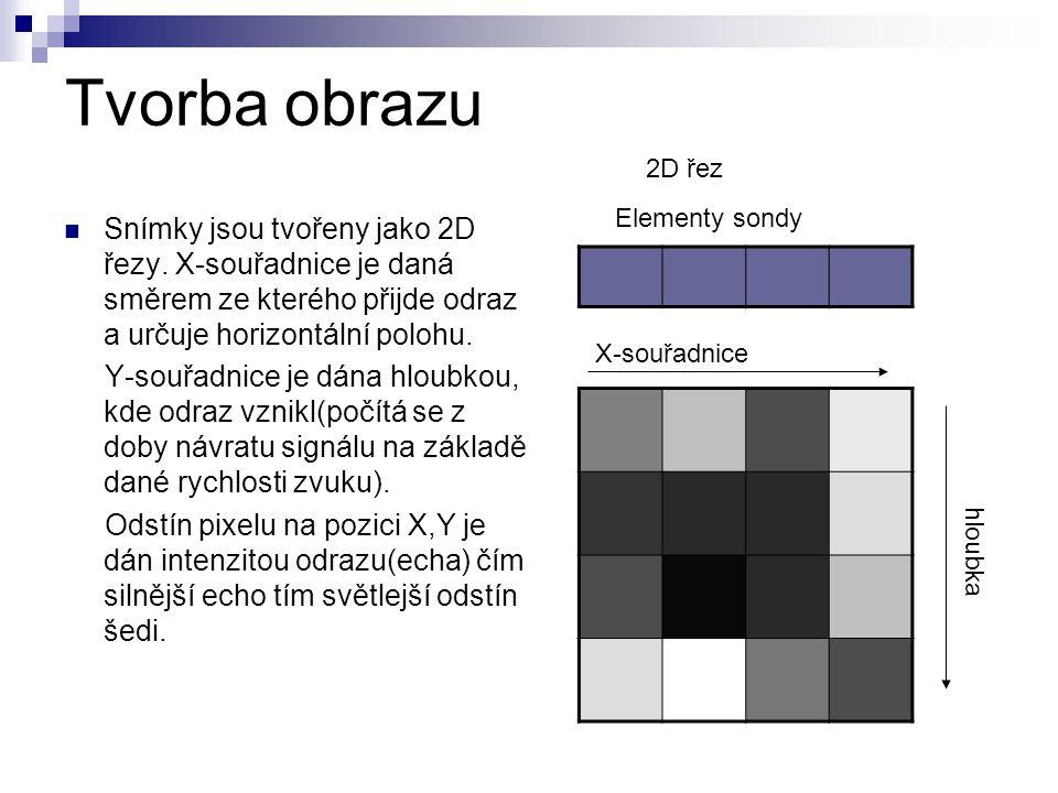 Tvorba obrazu 2D řez. Elementy sondy.