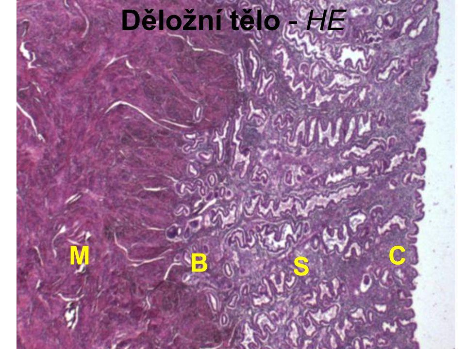 Děložní tělo - HE M C B S
