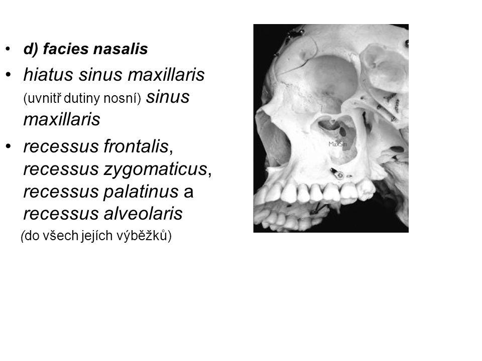 hiatus sinus maxillaris (uvnitř dutiny nosní) sinus maxillaris