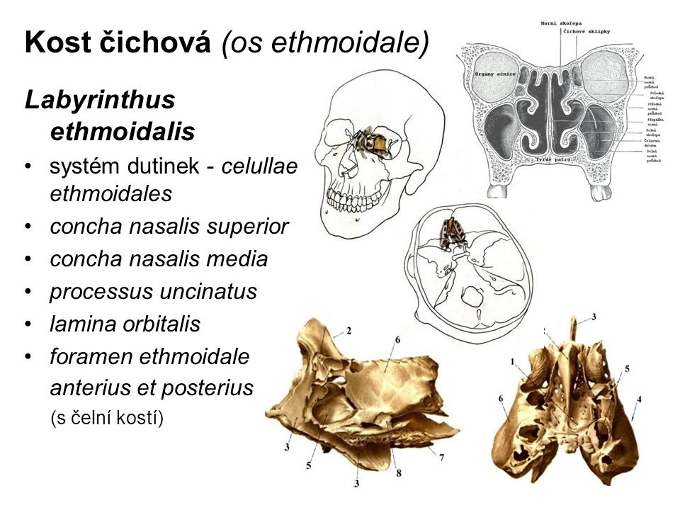 Kost čichová (os ethmoidale)