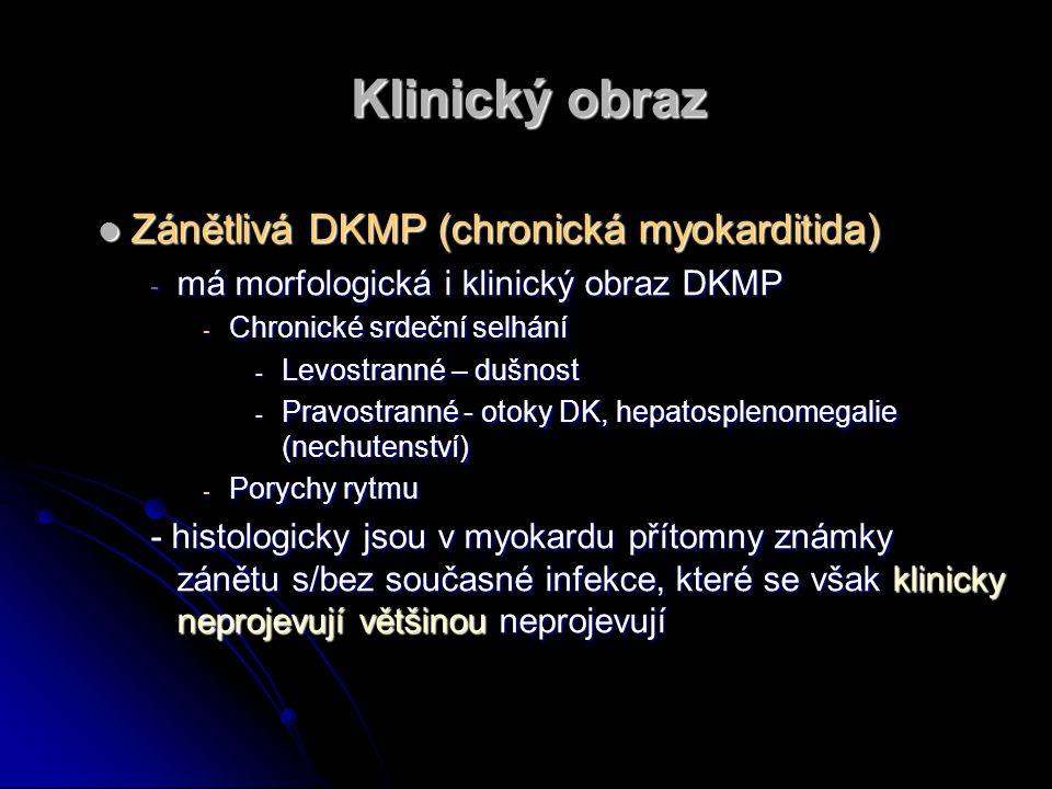 Klinický obraz Zánětlivá DKMP (chronická myokarditida)