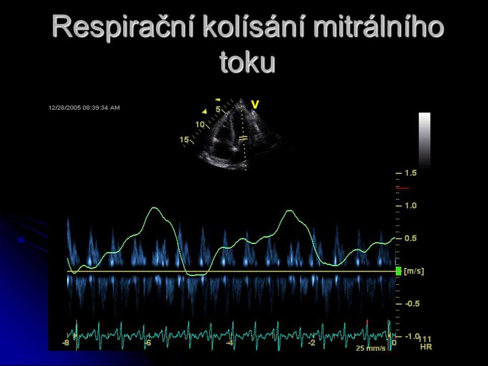 Respirační kolísání mitrálního toku