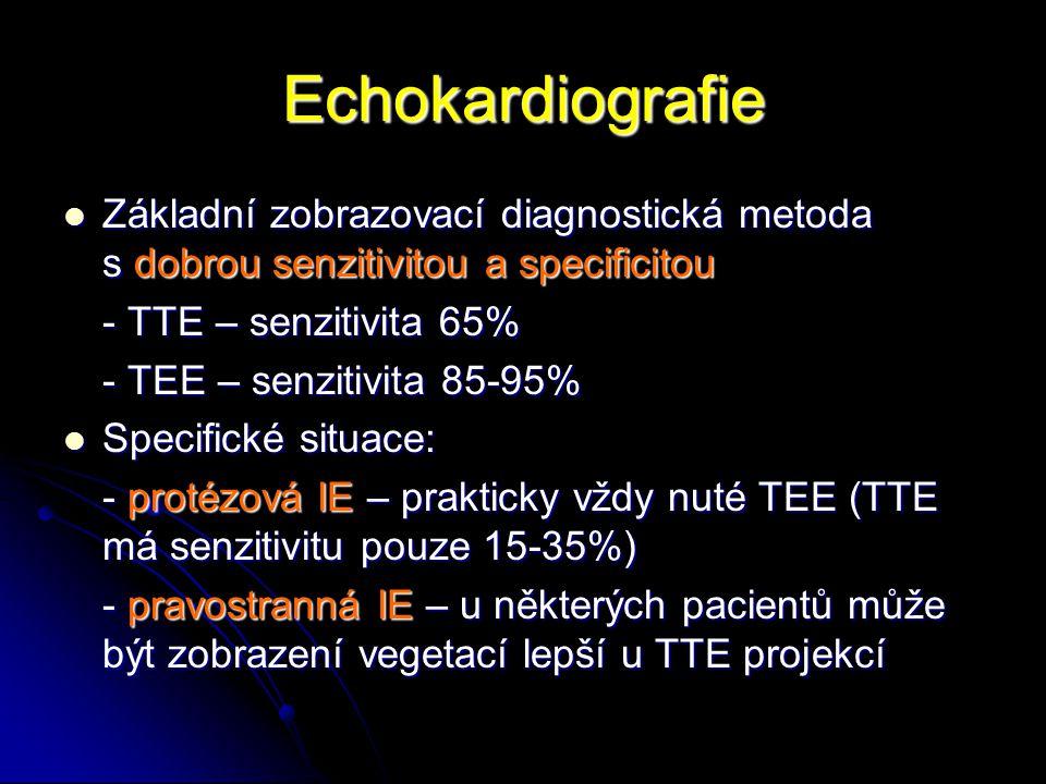 Echokardiografie Základní zobrazovací diagnostická metoda s dobrou senzitivitou a specificitou.
