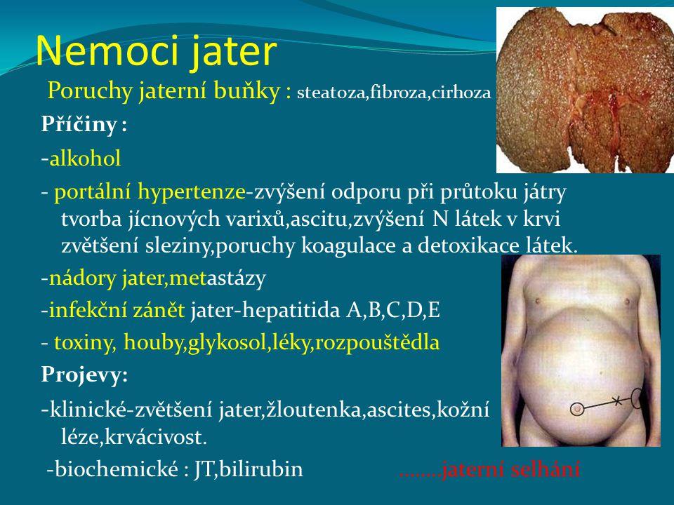 Nemoci jater Poruchy jaterní buňky : steatoza,fibroza,cirhoza -alkohol