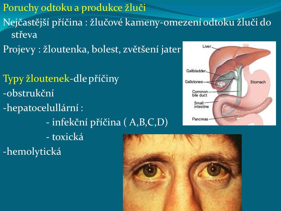 Poruchy odtoku a produkce žluči