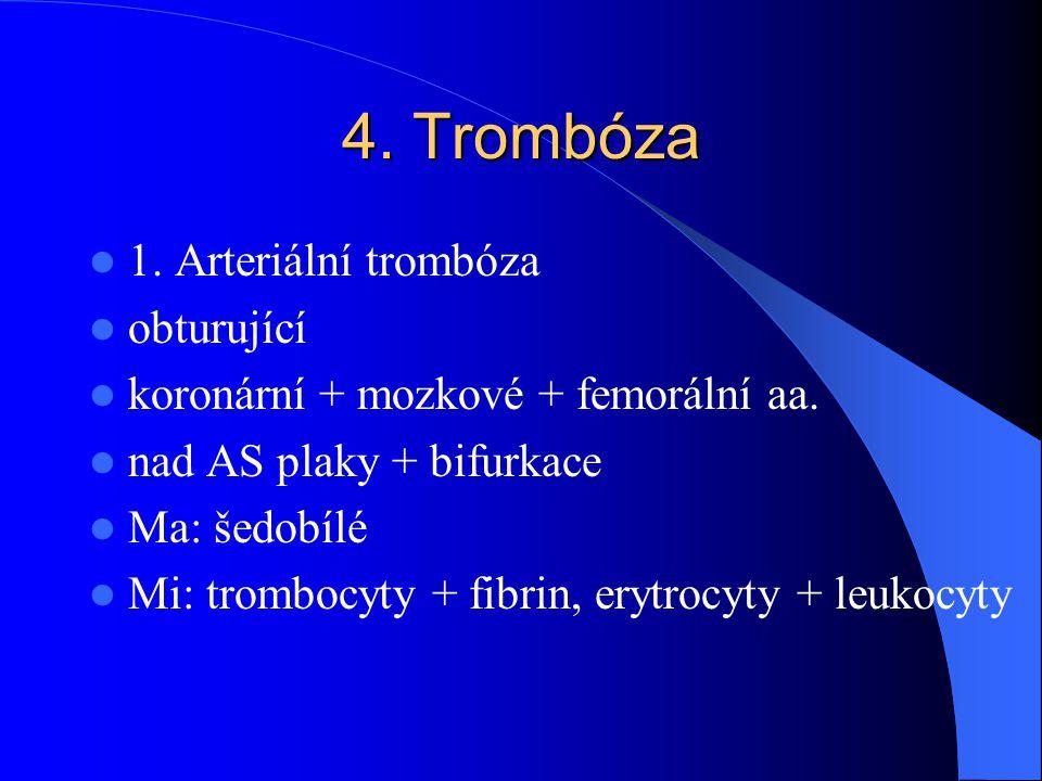 4. Trombóza 1. Arteriální trombóza obturující