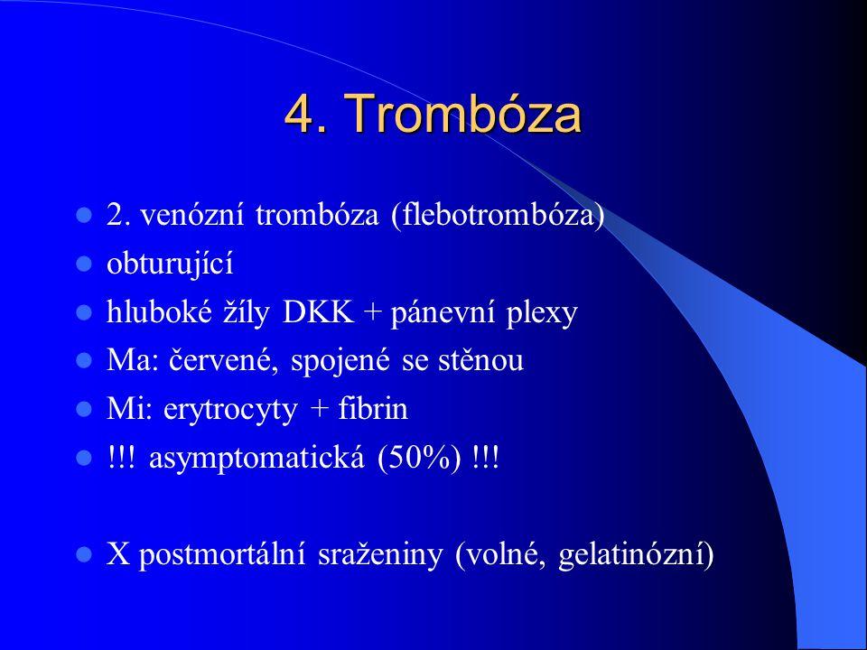 4. Trombóza 2. venózní trombóza (flebotrombóza) obturující