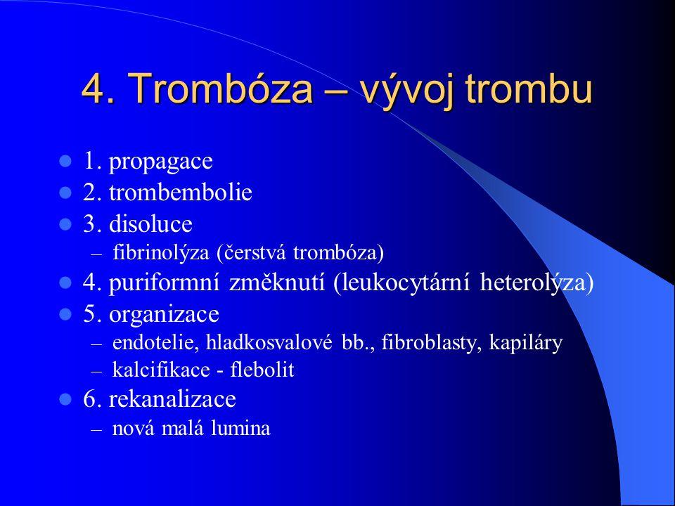 4. Trombóza – vývoj trombu