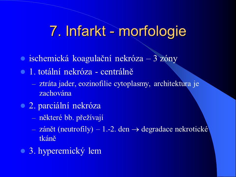 7. Infarkt - morfologie ischemická koagulační nekróza – 3 zóny