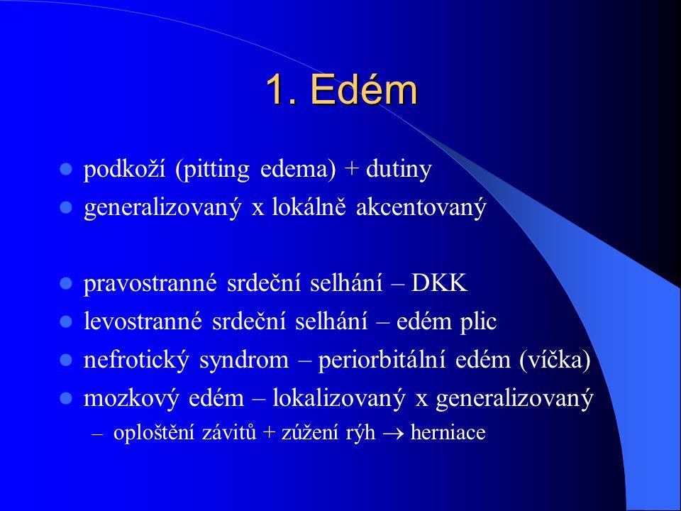 1. Edém podkoží (pitting edema) + dutiny