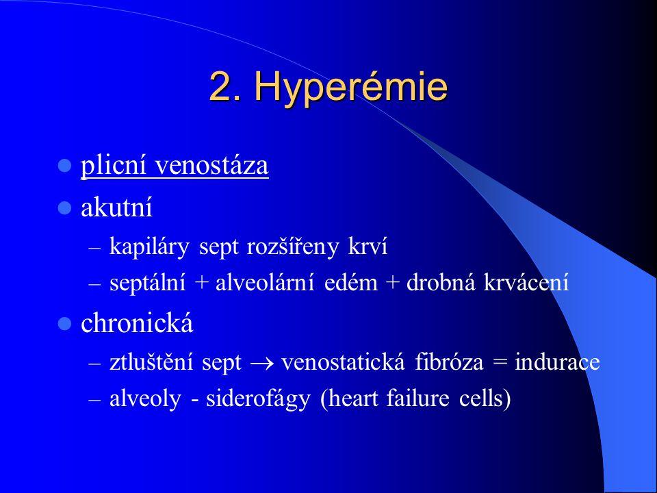 2. Hyperémie plicní venostáza akutní chronická