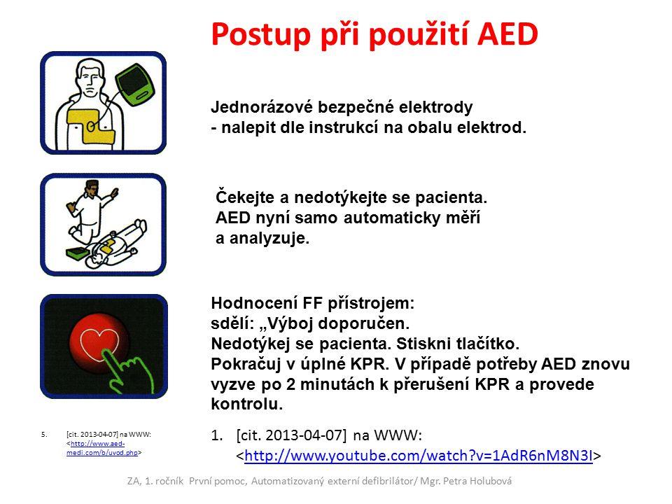 Postup při použití AED Jednorázové bezpečné elektrody - nalepit dle instrukcí na obalu elektrod. Čekejte a nedotýkejte se pacienta.
