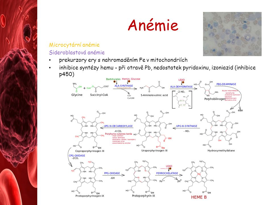 Anémie Microcytární anémie Sideroblastová anémie