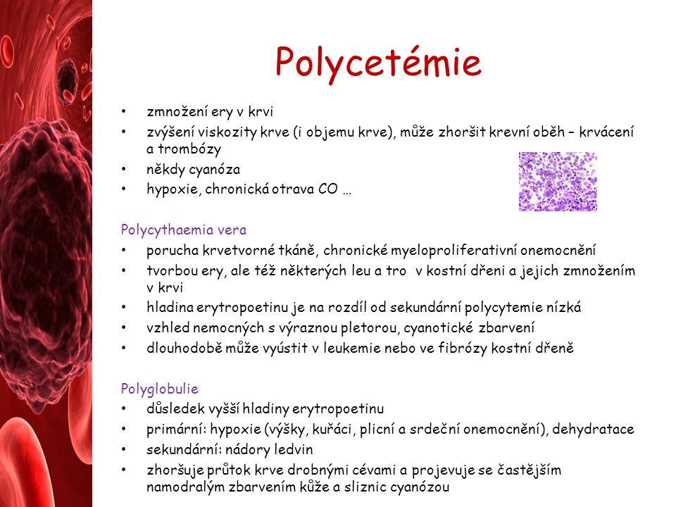 Polycetémie zmnožení ery v krvi