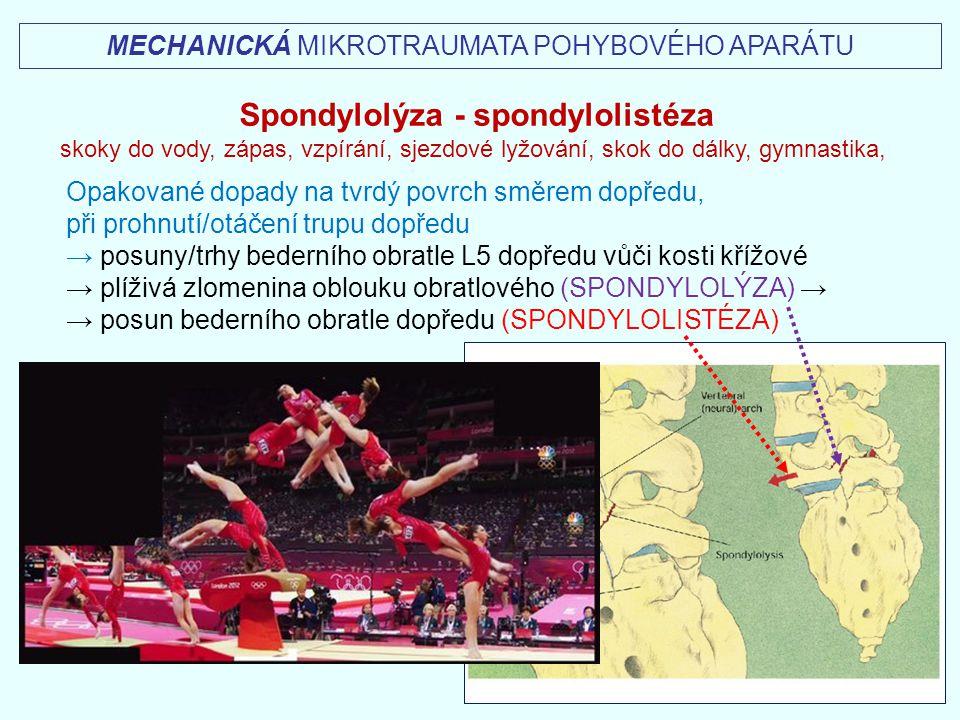 Spondylolýza - spondylolistéza