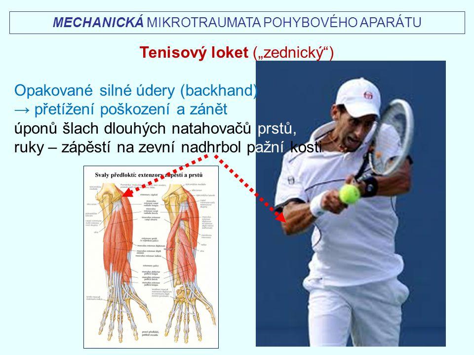 """Tenisový loket (""""zednický ) Opakované silné údery (backhand)"""