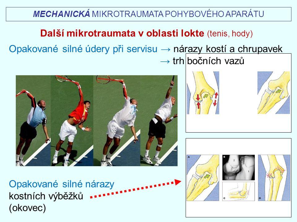 Další mikrotraumata v oblasti lokte (tenis, hody)