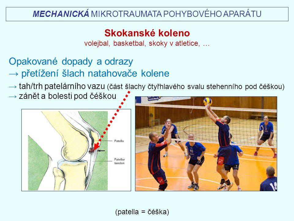 Opakované dopady a odrazy → přetížení šlach natahovače kolene
