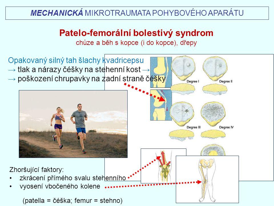 Patelo-femorální bolestivý syndrom
