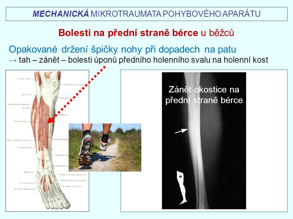 Bolesti na přední straně bérce u běžců