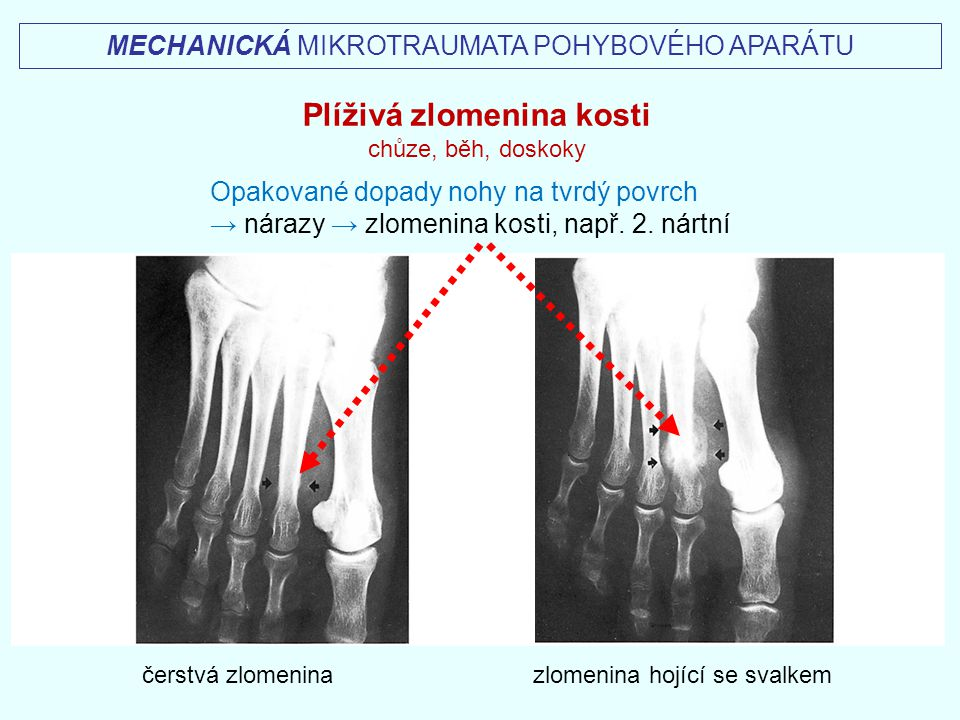 Plíživá zlomenina kosti