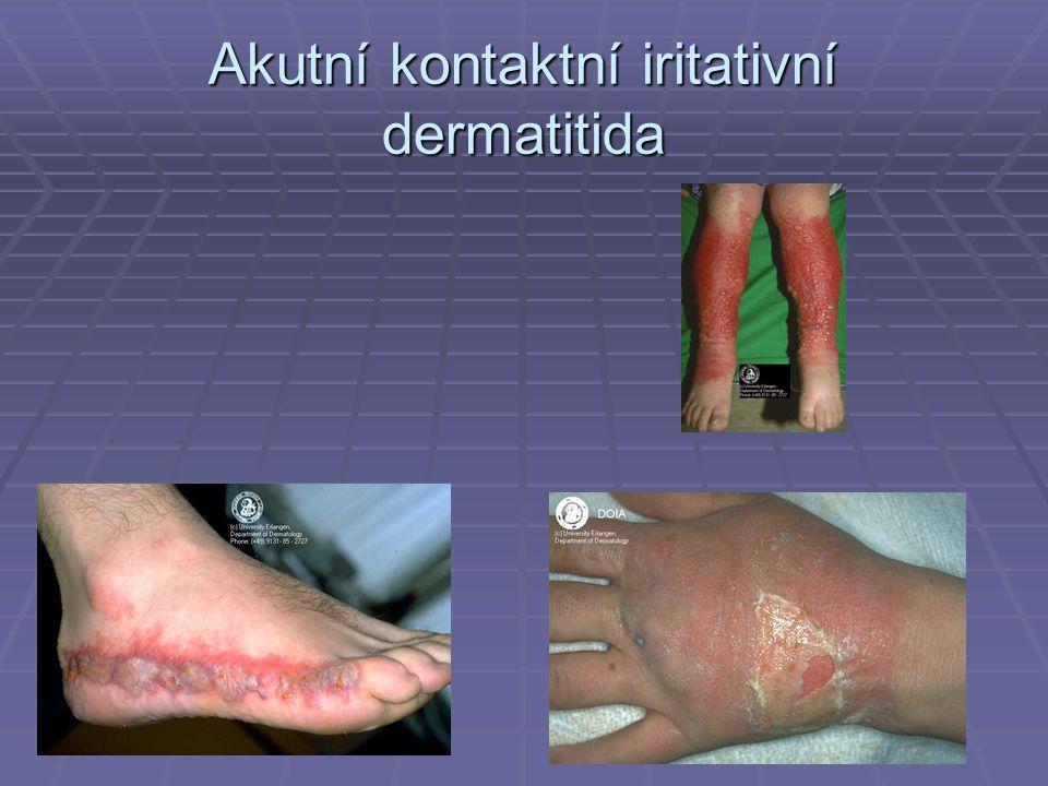 Akutní kontaktní iritativní dermatitida