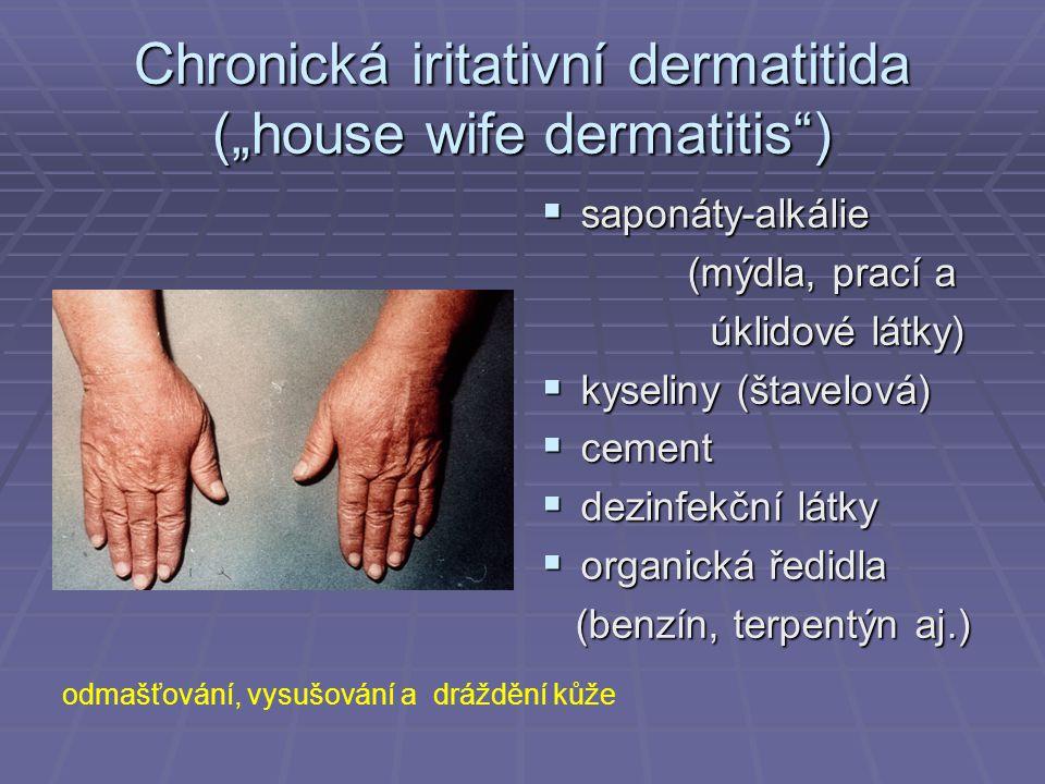 "Chronická iritativní dermatitida (""house wife dermatitis )"