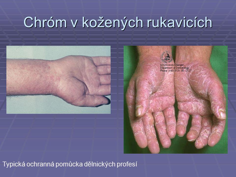 Chróm v kožených rukavicích