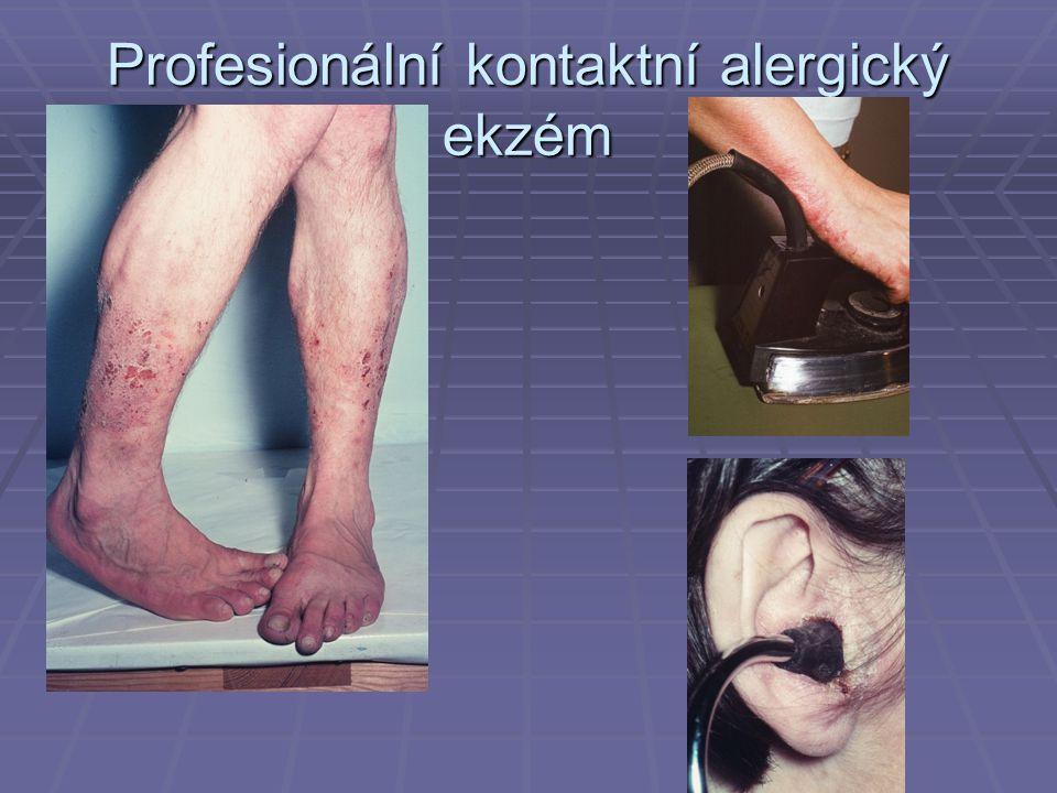 Profesionální kontaktní alergický ekzém